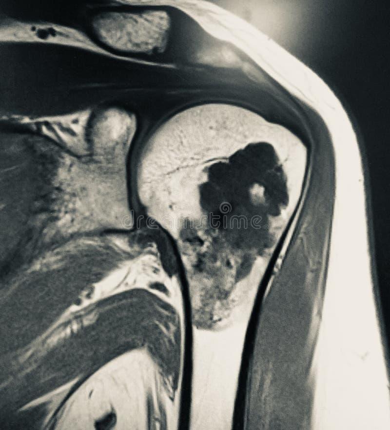 Schön Mri Anatomie Der Schulter Bilder - Anatomie Von Menschlichen ...