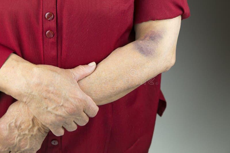 Großes hämatom auf menschlichem Arm lizenzfreies stockbild