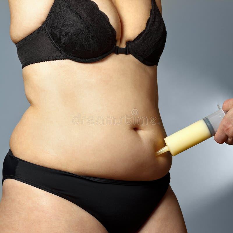 Grosse seringue de liposuccion de ventre de femme image stock