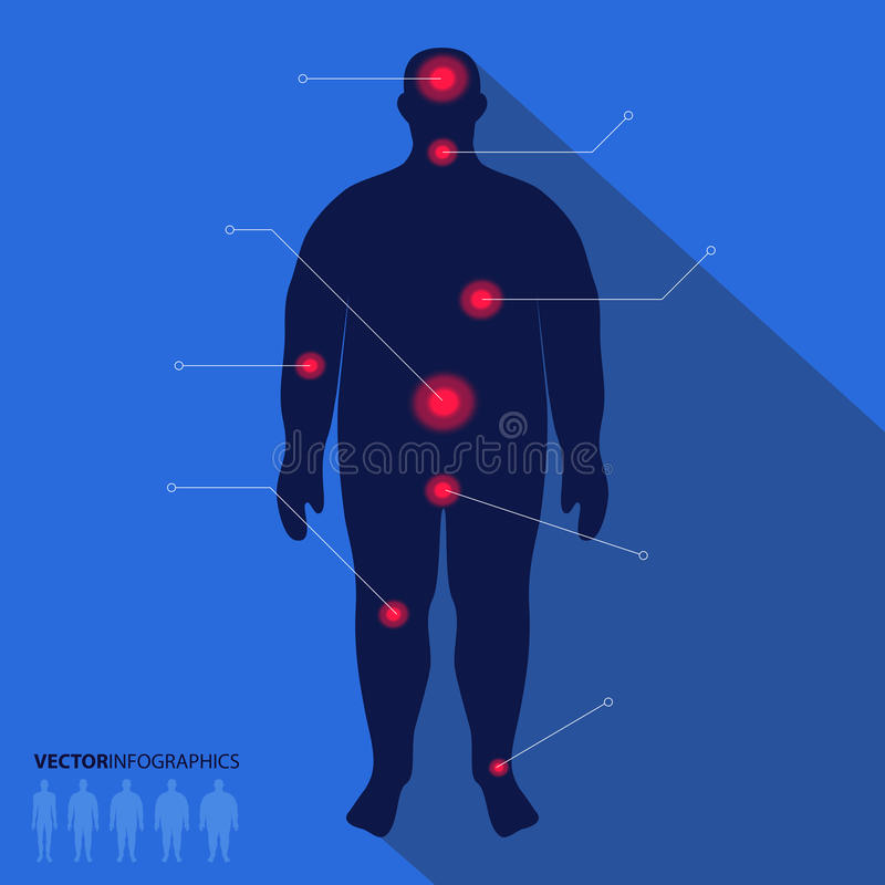 Grosse silhouette d'homme, point de douleur Infographics médical de vecteur illustration libre de droits