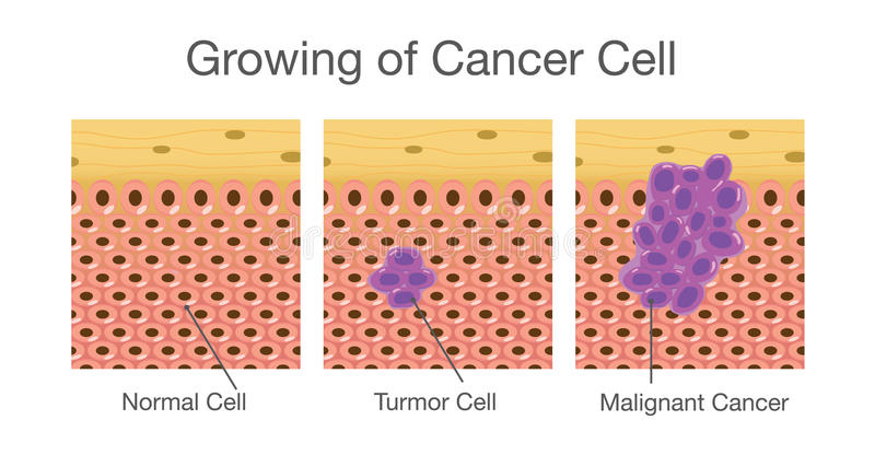 Growing of cancer cell. vector illustration