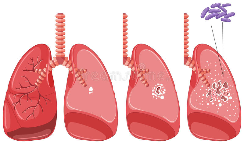 Gruźlica w ludzkich płucach ilustracja wektor