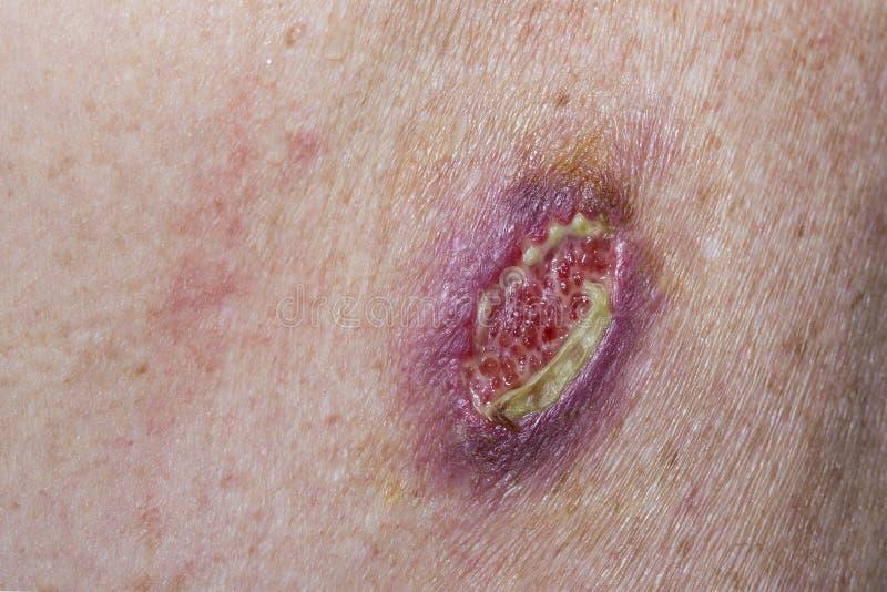 Grundläggande cellCarcinoma royaltyfri fotografi