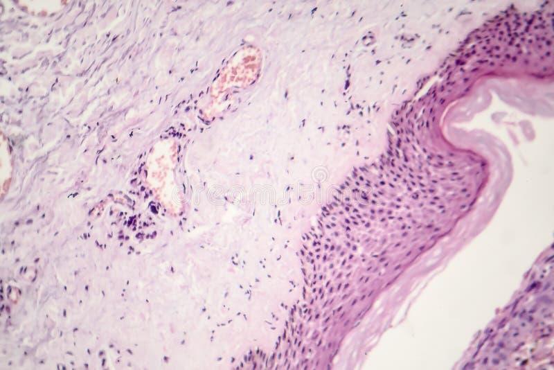 Grundläggande cellCarcinoma royaltyfria bilder