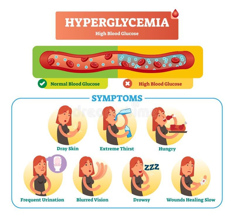 Grupo da coleção da ilustração do vetor da hiperglicemia Sintoma, diagnóstico e sinais isolados como o aviso à doença e à desorde ilustração royalty free