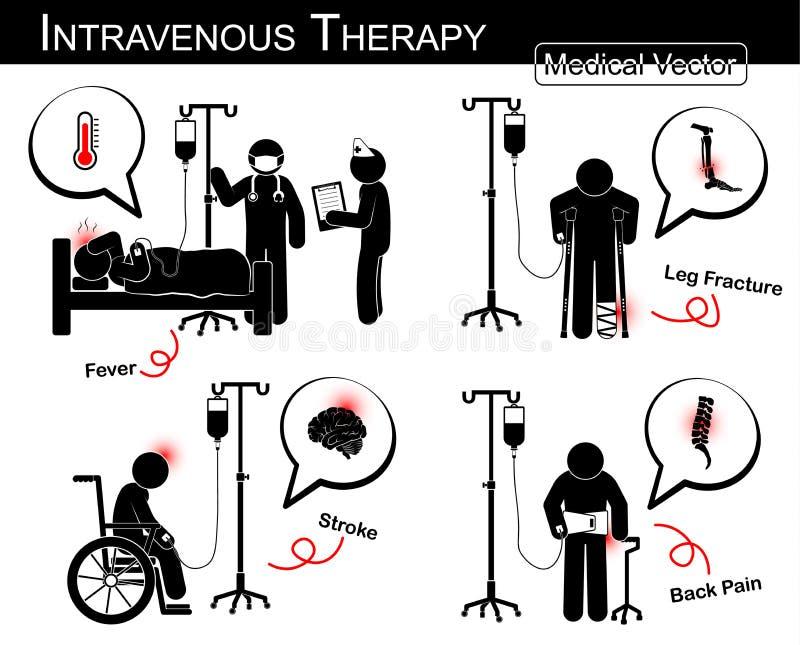 Grupo de homem da vara do vetor: paciente com doença múltipla com líquido intravenoso (projeto liso, estilo branco preto) (médico ilustração do vetor