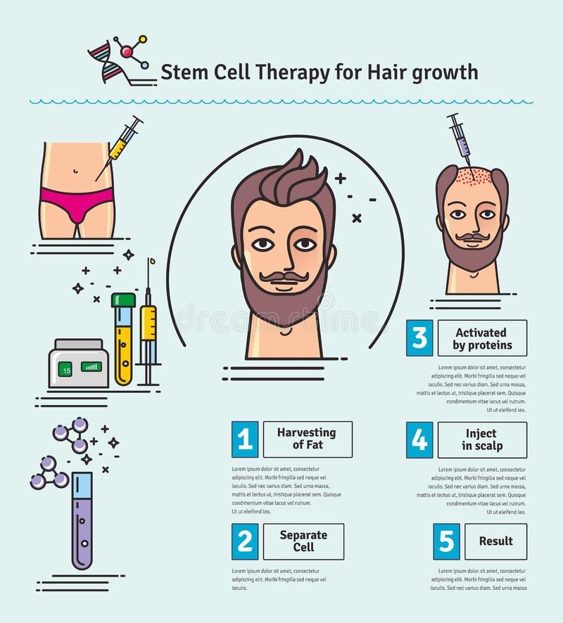 Grupo ilustrado vetor com terapia de célula estaminal para o crescimento do cabelo ilustração stock