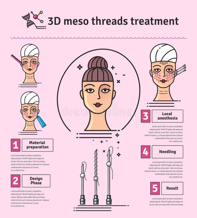 Grupo ilustrado vetor com terapia meso da face lift da linha 3d ilustração do vetor