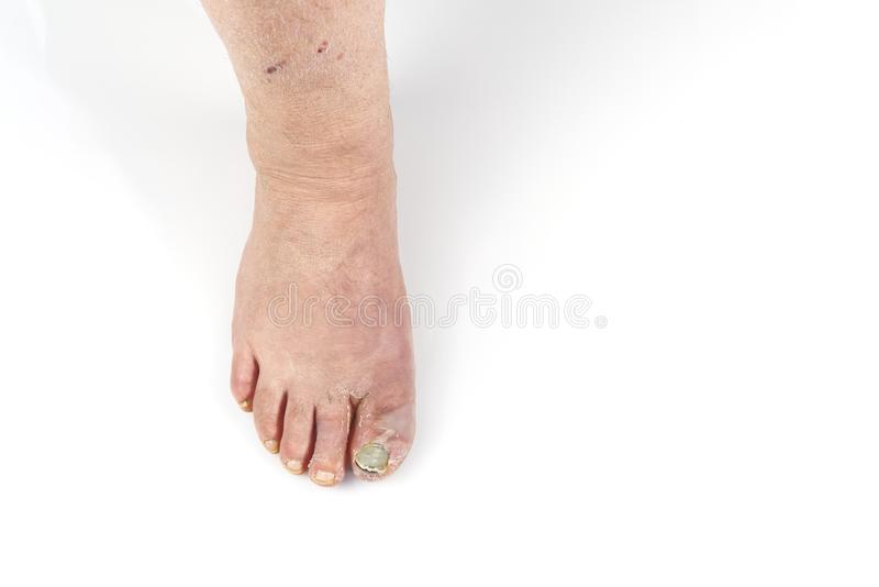 Grzyb pajęczysty wyizolowany na białym Sore paznokcie, grzyb paznokci bliskie zdjęcie zdjęcia stock