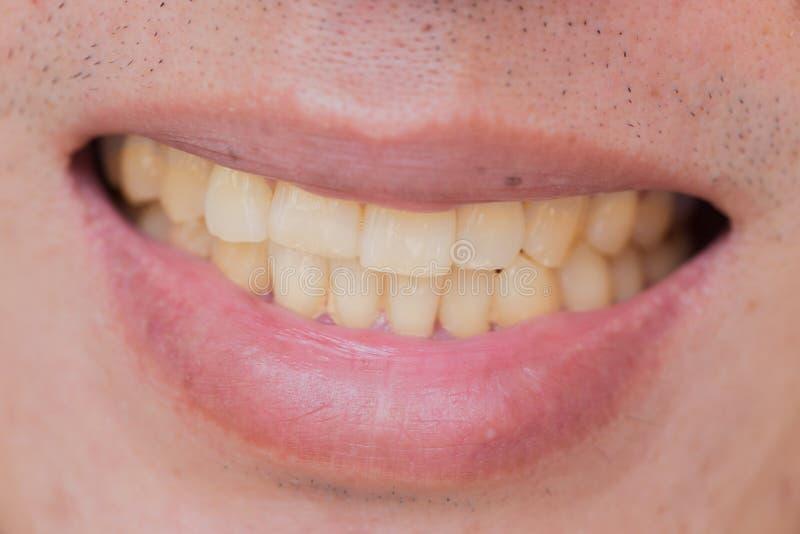 Gula tänder i man från rök och kaffe royaltyfria foton
