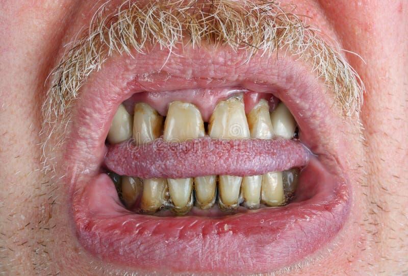 Gula tänder och mustasch, biten tunga och torra kanter i en äldre gamal manmakro royaltyfria bilder
