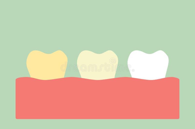 Gulna till den vita tanden, tänder som gör vit begrepp royaltyfri illustrationer