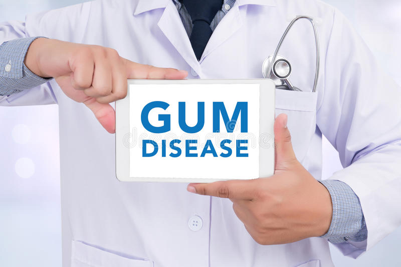 GUM DISEASE CONCEPT. Doctor holding digital tablet royalty free stock photography