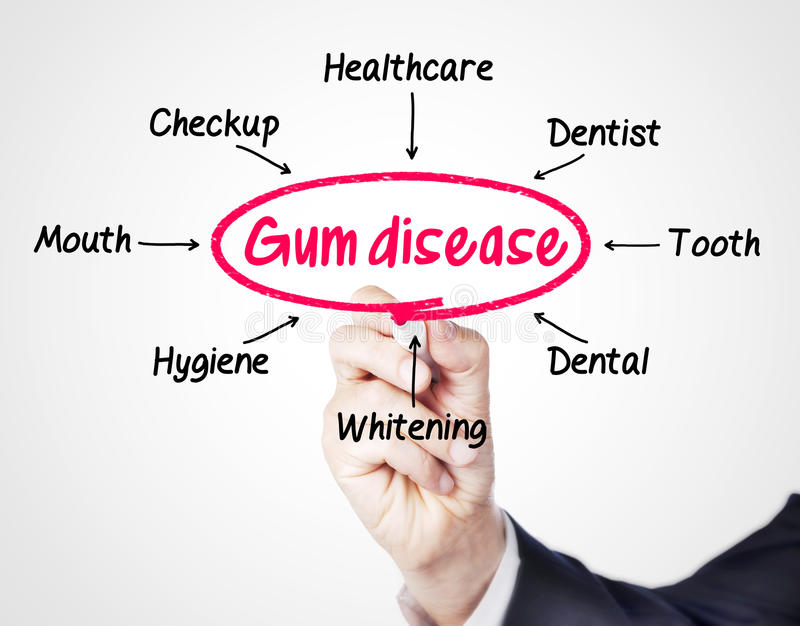 Gum disease. Concept sketched on screen royalty free stock photography
