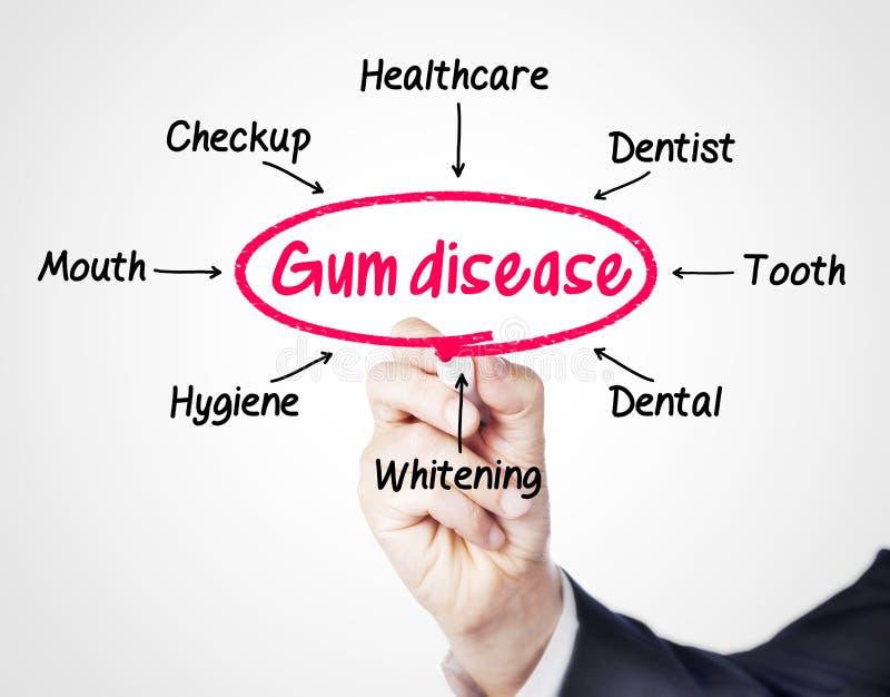 Gum disease royalty free stock photography
