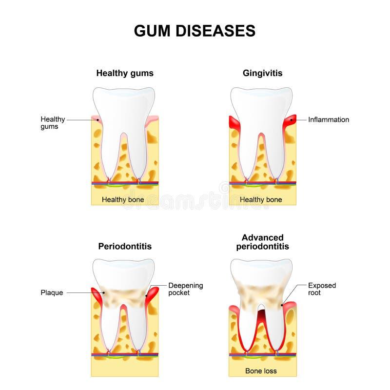 Gum disease. Gingivitis and Periodontitis. Gingivitis - the gums are swollen, bone is healthy. Periodontitis - the gums are swollen and the bone is also vector illustration
