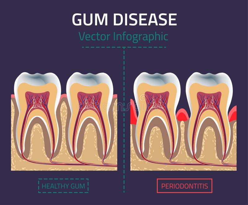 Gum disease vector vector illustration