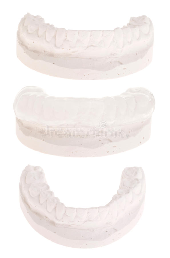 Download Gum shield stock photo. Image of prosthetic, health, periodontal - 19471400