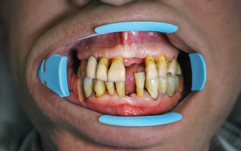 Gums and tooth structure have been worn away leading to exposed stock images