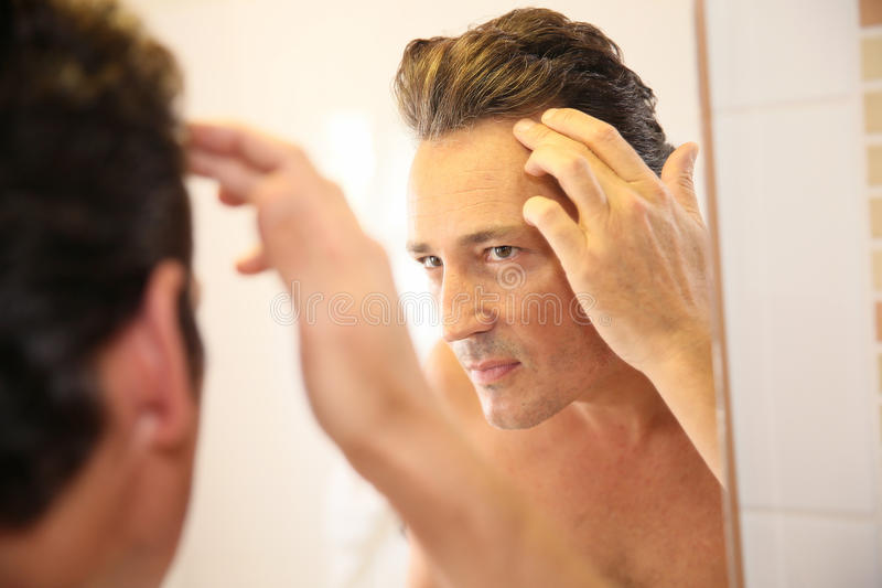 Gut aussehender Mann, der um seinen Haarausfall sich sorgt stockfoto