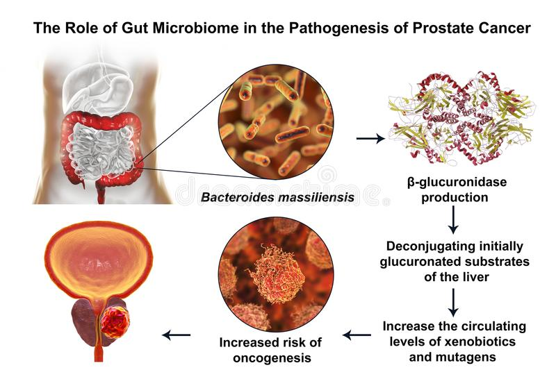 Gut microbiome and prostate cancer. 3D illustration showing association of Bacteroides massiliensis bacteria present in large intestine and prostate cancer stock illustration