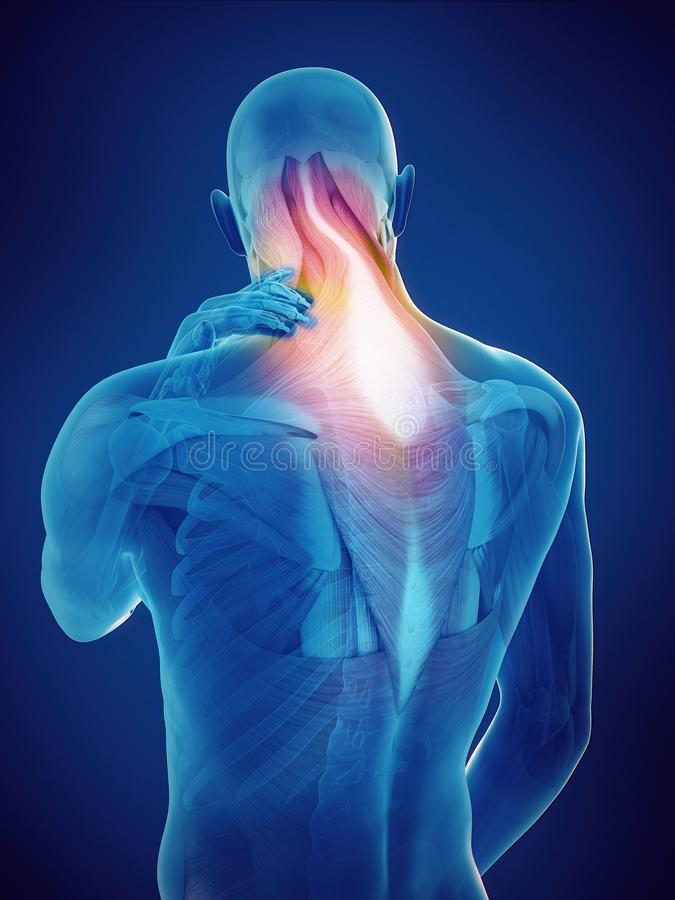 Guy with neck pain. Medically accurate 3d rendering of a guy with neck pain vector illustration