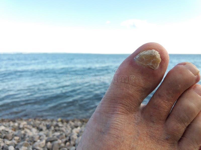 Gwoździa grzyba głęboki afektowany toenail obrazy royalty free