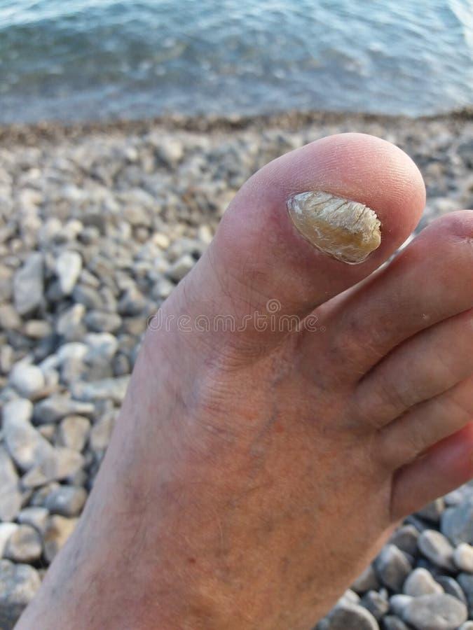 Gwoździa grzyba głęboki afektowany toenail zdjęcia stock