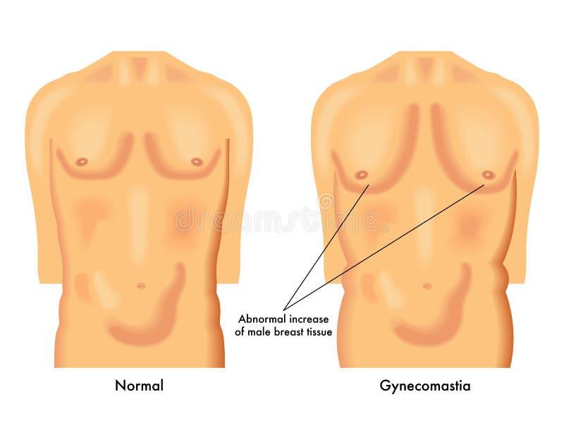 Gynecomastia vektor illustrationer