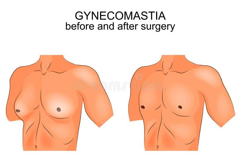Gynecomasty πριν και μετά από τη χειρουργική επέμβαση διανυσματική απεικόνιση