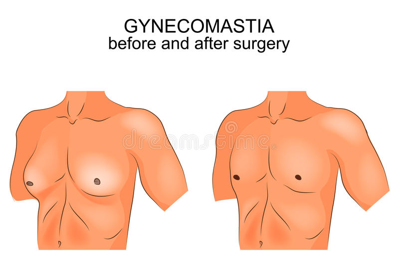 Gynecomasty antes e depois da cirurgia ilustração do vetor
