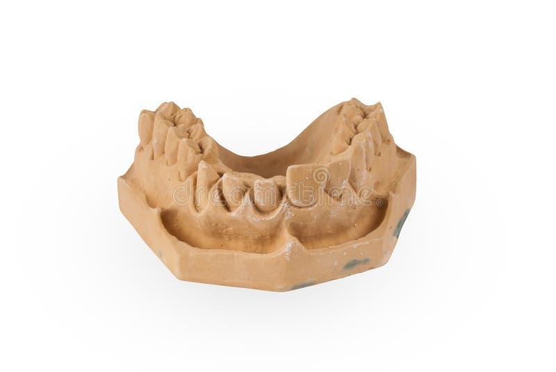 Gypsum model of human jaw. On white background stock image