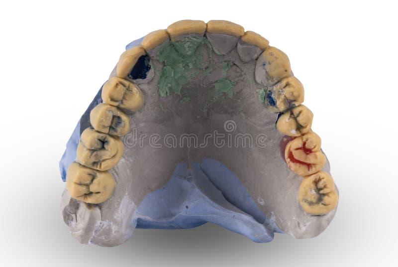 Gypsum model of human jaw. On white background stock images