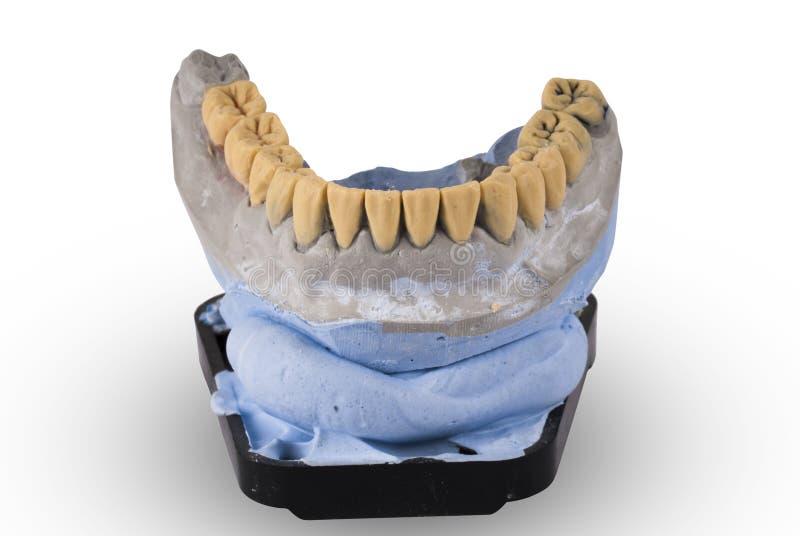 Gypsum model of human jaw isolated on white. Background stock photo