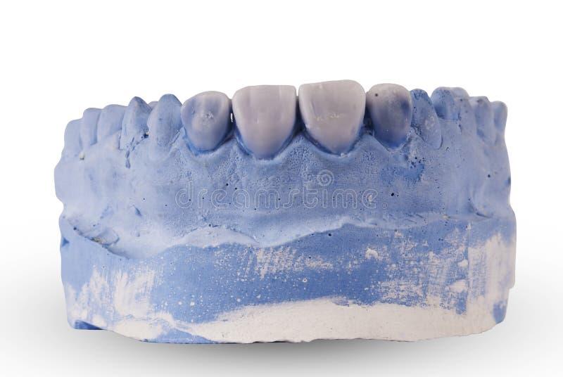 Gypsum model of human jaw isolated. On white background stock photos