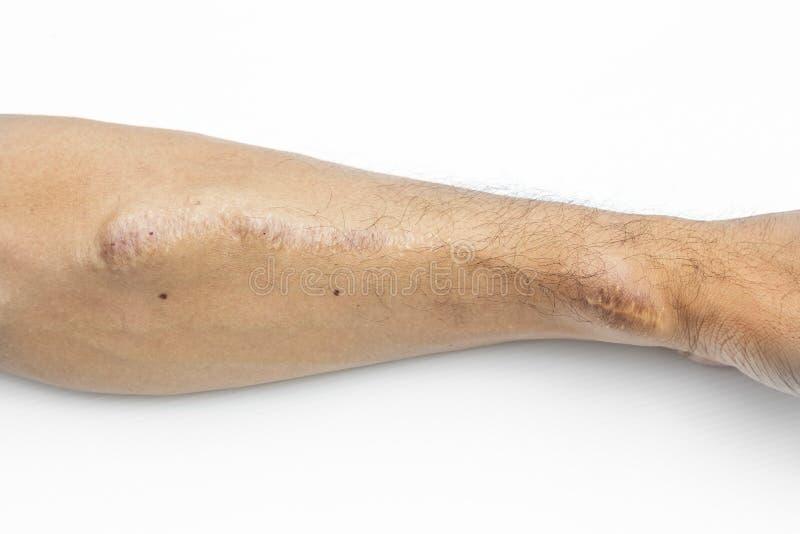 Hämodialyseblutgefäß für Niereninsuffizienz lizenzfreies stockfoto