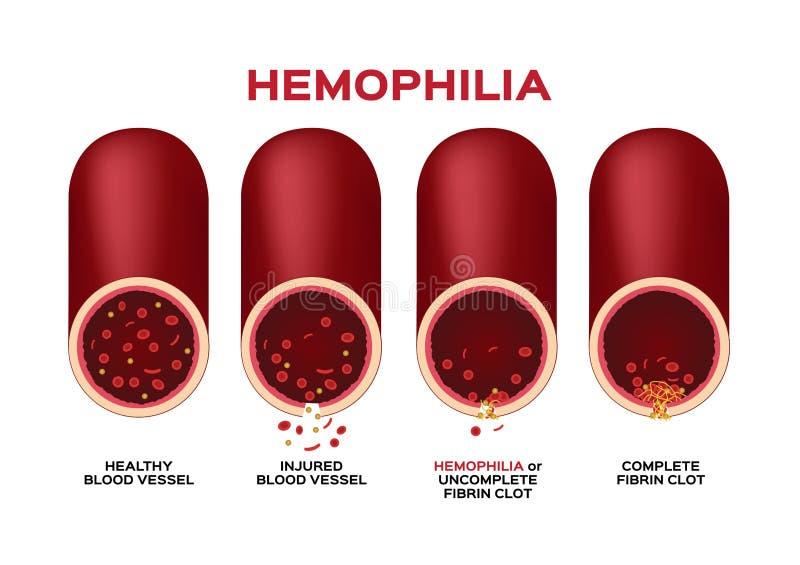 Hämophilie- oder Hämophilie- und Blutgefäßvektor/Bluten/Wunde vektor abbildung