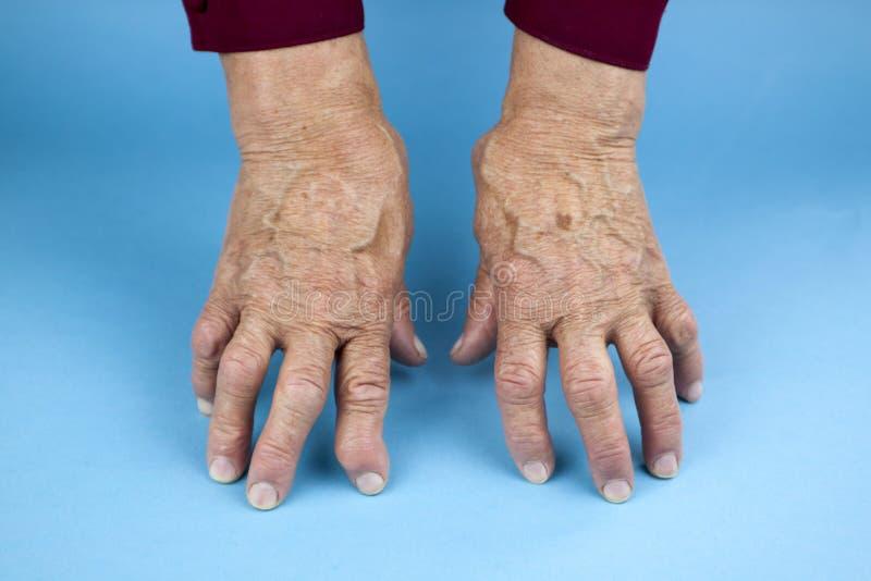 Hände der rheumatoiden Arthritis stockfoto
