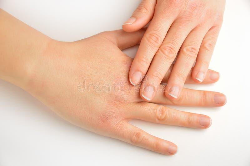 Hände, die mit trockener Haut sich berühren stockfoto