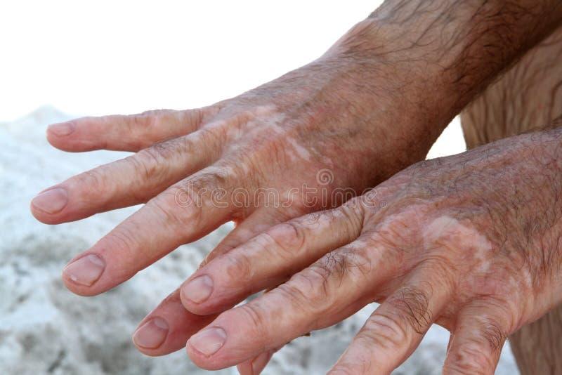 Hände mit Vitiligohautzustand lizenzfreie stockbilder