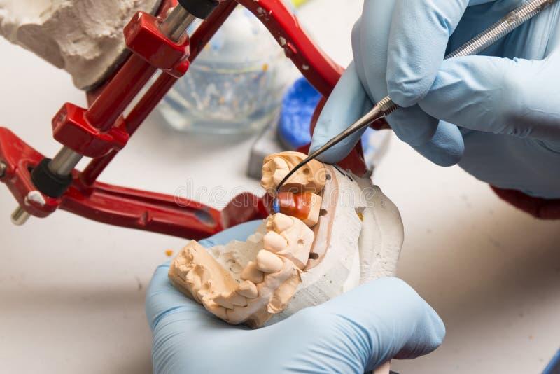 Händer av tandläkaren som arbetar på en tand- implantat arkivbilder