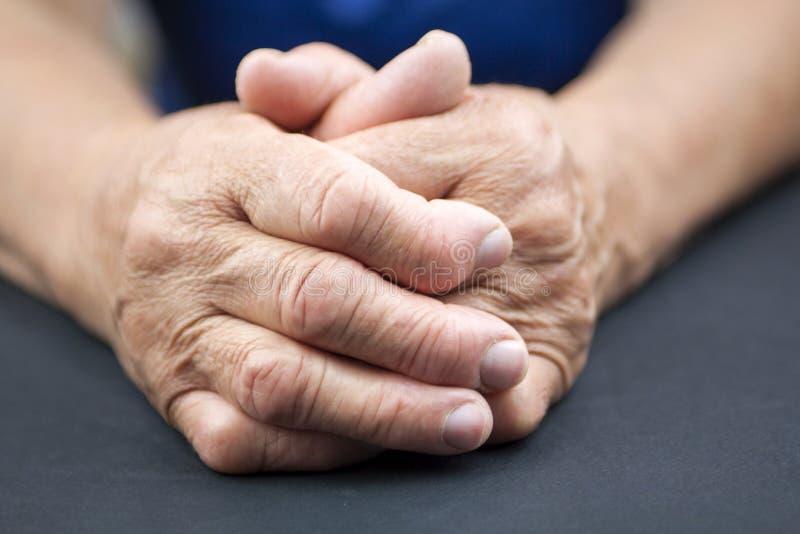 Händer för reumatoid artrit arkivbilder
