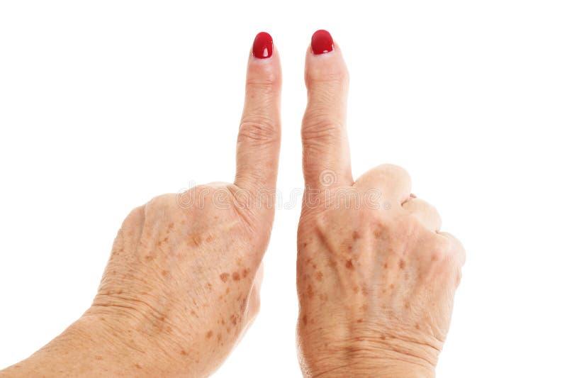 Händer för ` s för gammal kvinna deformerade från reumatoid artrit royaltyfria bilder