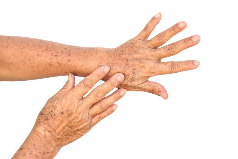 Händer mycket av fräknar och skrynklor royaltyfri bild