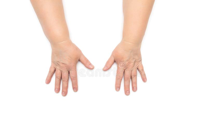 Händerna av en äldre kvinna med skrynklor och torr hud, uttorkning, vit bakgrund, isolat, dermatologi royaltyfria foton
