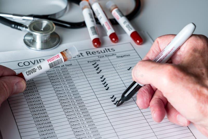 Hängen Sie ein Teströhrchen mit positivem Ergebnis zur Coronavirus-Kontrolle mit einem Testbluttestrohr bei stockfotos