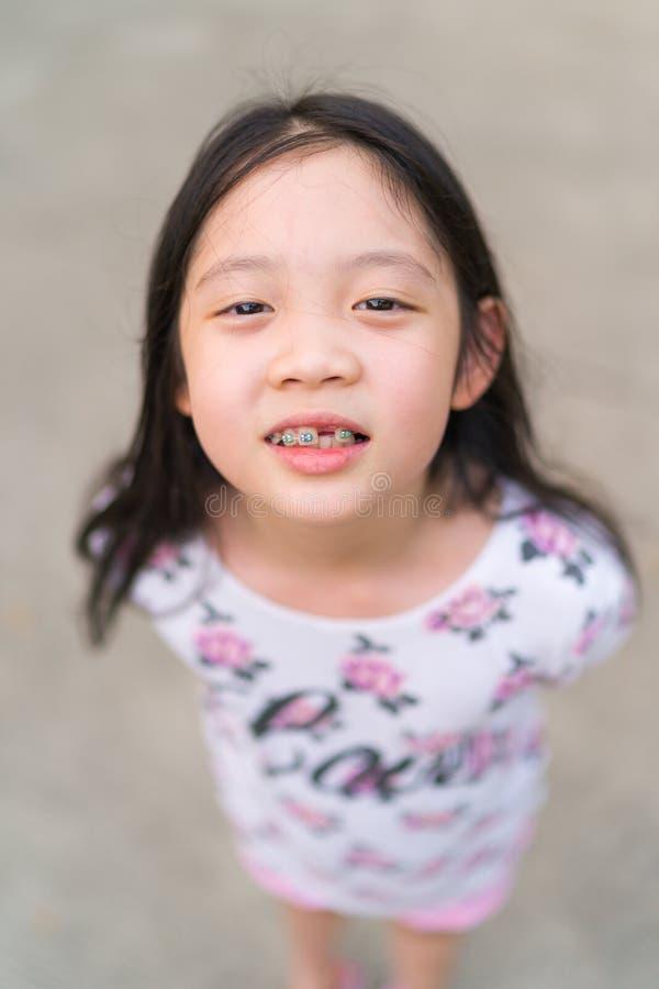 Hänglsen på tänder av den unga asiatiska ungen royaltyfri fotografi