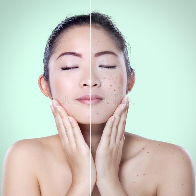 Härlig aknebehandling för kvinna före och efter royaltyfri fotografi