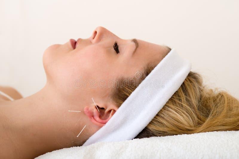Härlig kvinna som har akupunktur. royaltyfri foto