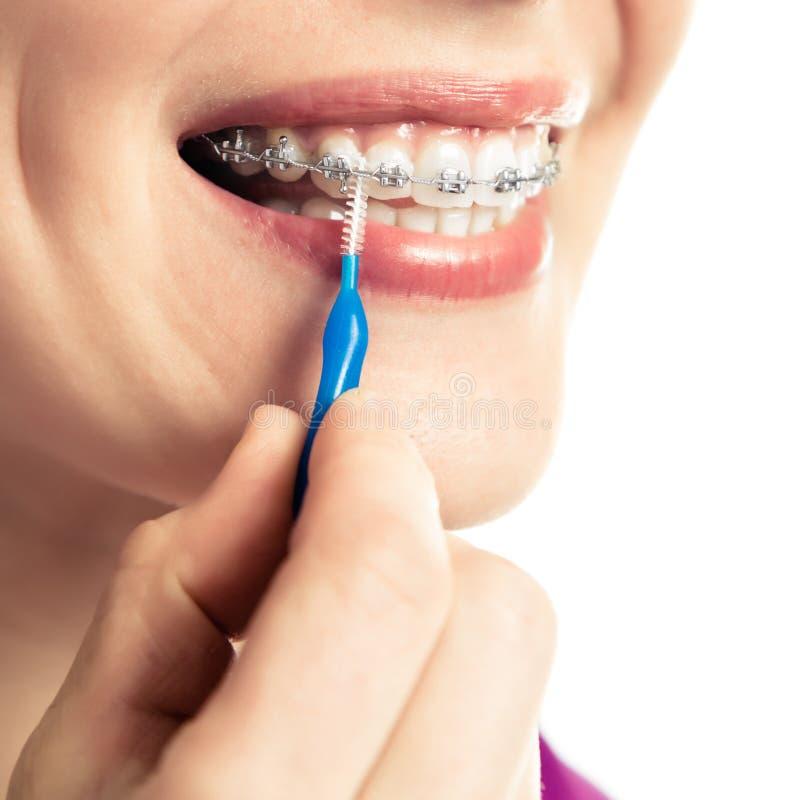 Härlig le flicka med hållaren för tänder arkivbilder